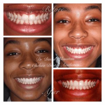 Patient's smile photos