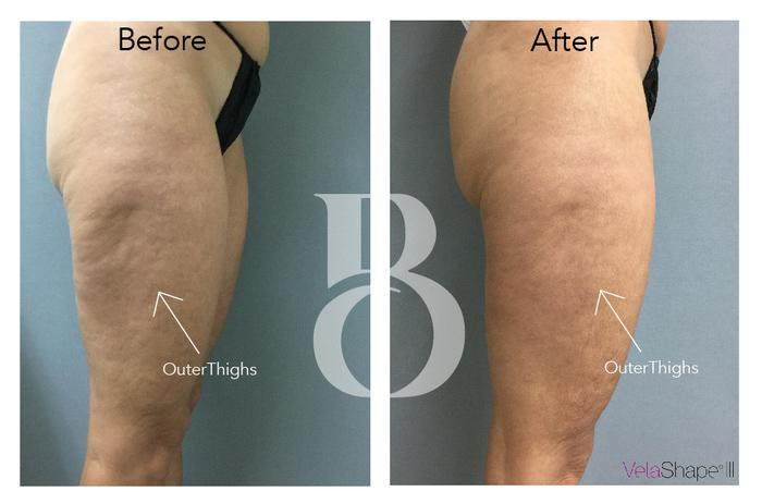 Velashape before and after