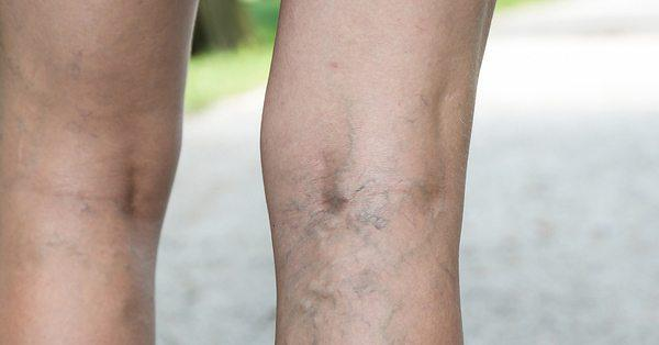 Varicose Veins is A Very Serious Problem