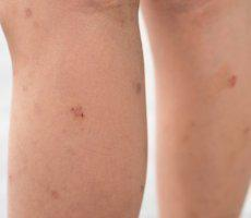 Lumps, Bumps & Cysts - Owen Brown Columbia, MD: MD Vein ...