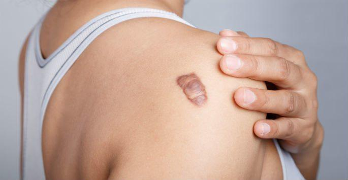 Common Causes Of Keloid Scars By Lisa Bootstaylor Md Body Esthetics Board Certified Plastic Surgeons