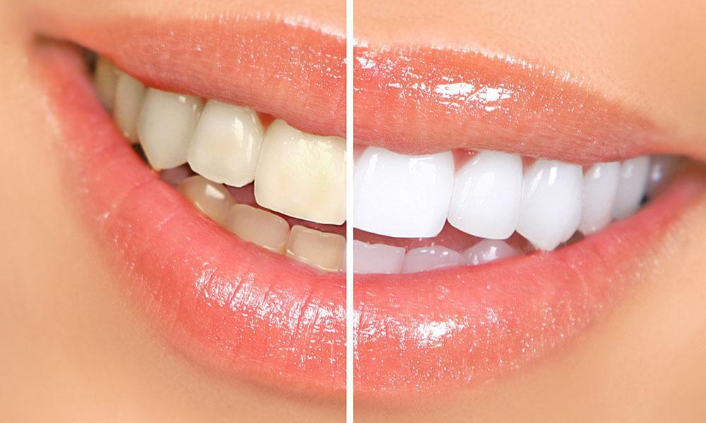 Little Known Benefits of Teeth Whitening: Jeffrey B. Van Orman, DMD: Dentist
