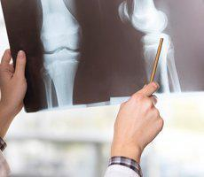 bone density screening  service photo