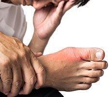 gout service photo