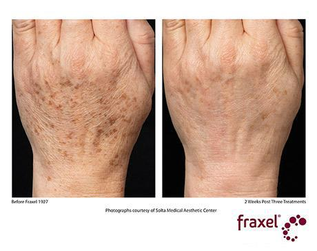 Fraxel Dual Before & After photo