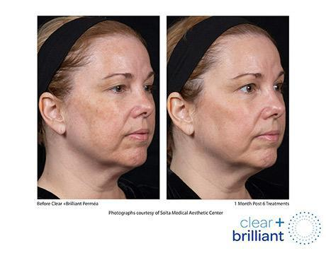 Clear + Brilliant Before & After Image of woman
