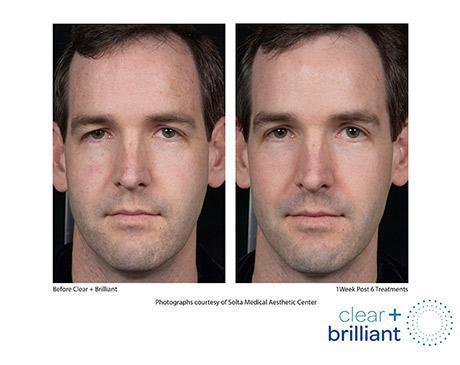 Clear + Brilliant Before & After Image of man