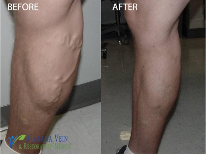 Varicose Veins Before Amp After Hoover Al Amp Cullman Al