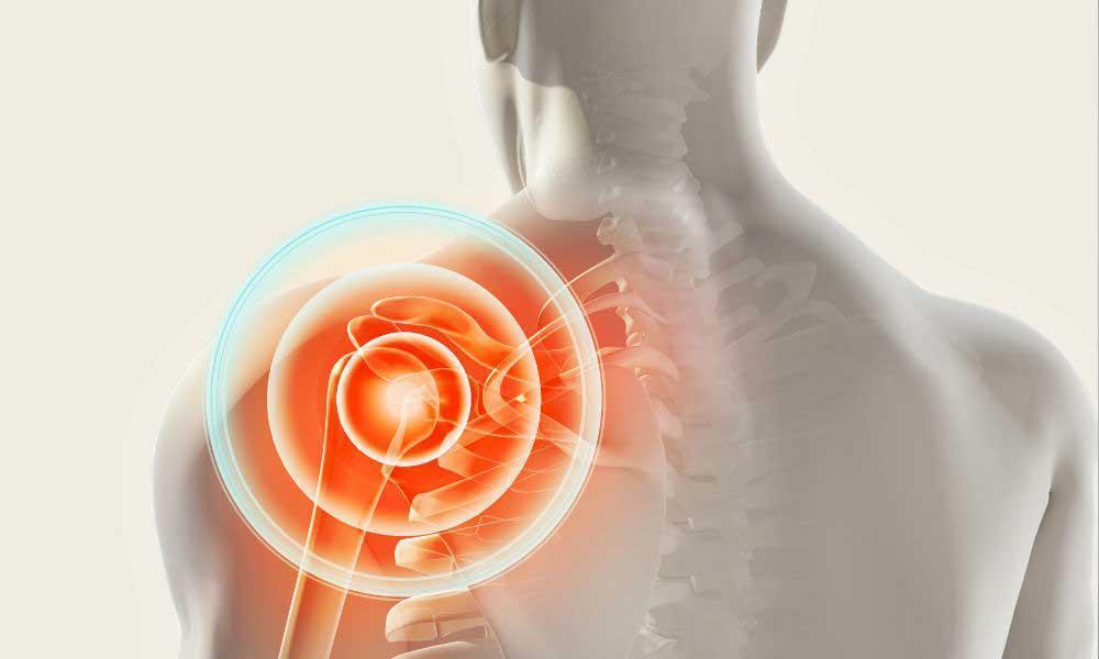 Arthroscopic Trans Osseous Tension Band Rotator Cuff Repair Arizona