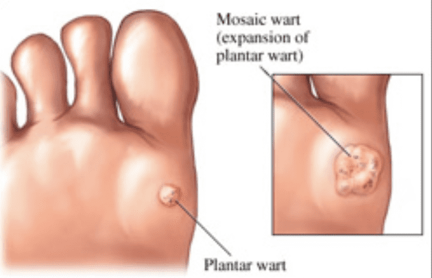 Wart treatment causes blisters - Wart on foot or blister