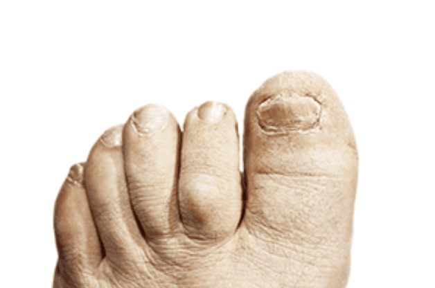 Say Goodbye to Embarrassing Toenail Fungus with New PinPointe ...