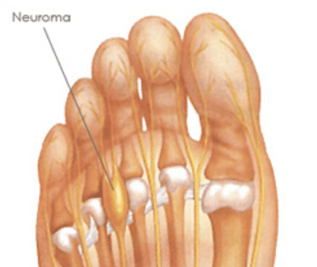 79de56f197 A neuroma is a thickening of nerve tissue that can develop in various parts  of your body. In the foot, the most common occurring neuroma develops at  the ...