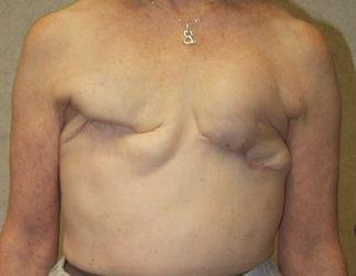 traditional mastectomy