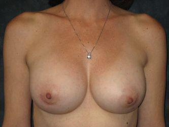 Nipple-sparing mastectomy