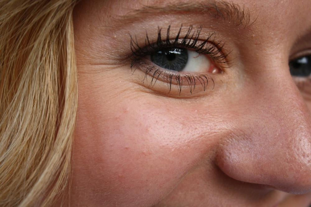 10 Tips to Prepare for Eyelid Surgery: Daniel Brauman, MBBS