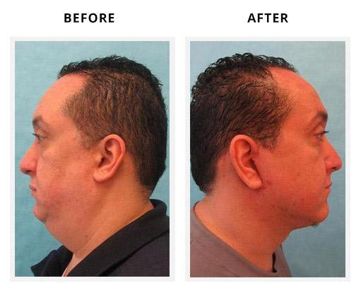 Neck Liposuction Gallery Fort Worth Tx Polavarapu