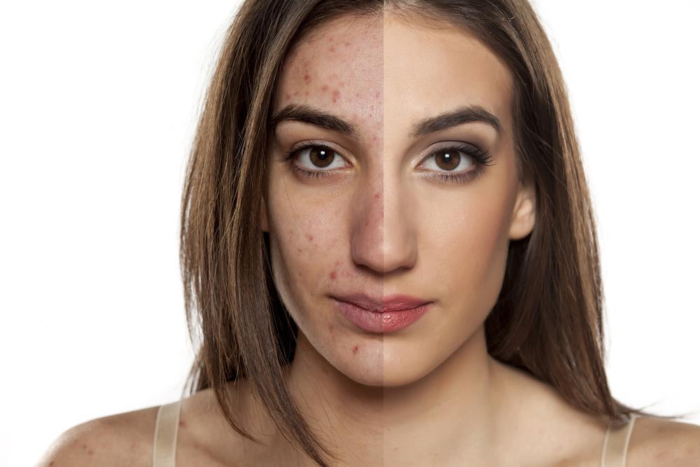Adult Hormonal Acne