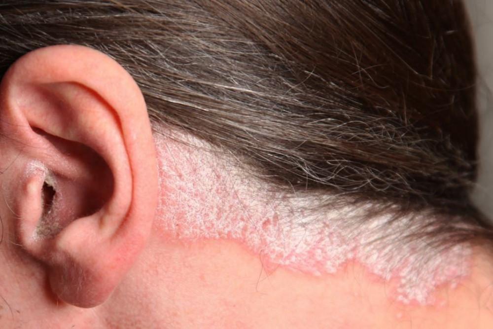 dry scalp psoriasis