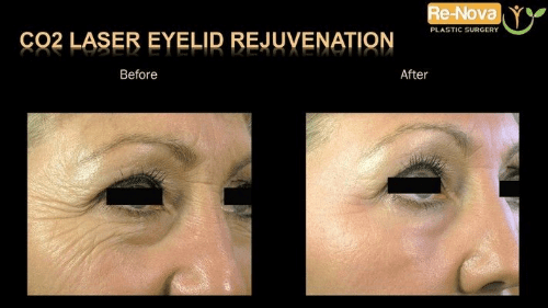 Gain Refreshed-looking Eyelids with CO2 Laser Eyelid