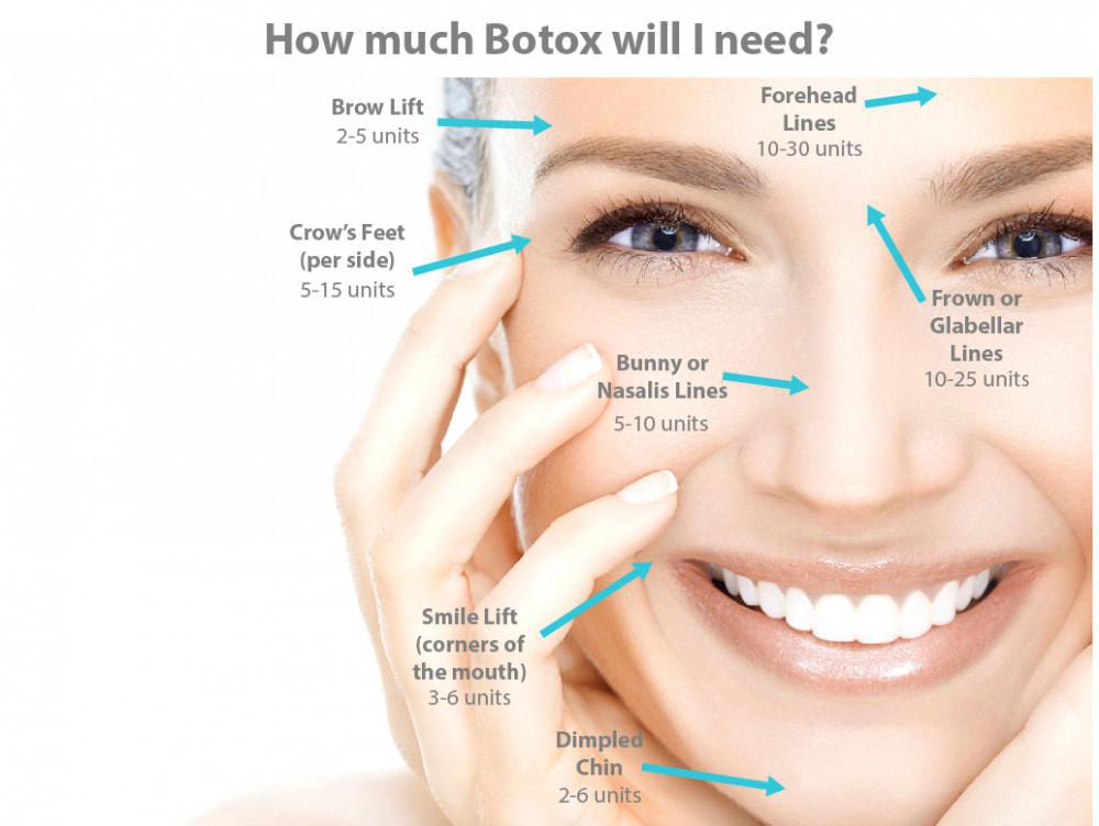 Here's a graphical representation of how much Botox the average person needs for certain procedures.