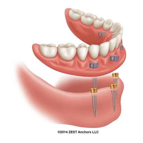 Click Tight Implant Denture