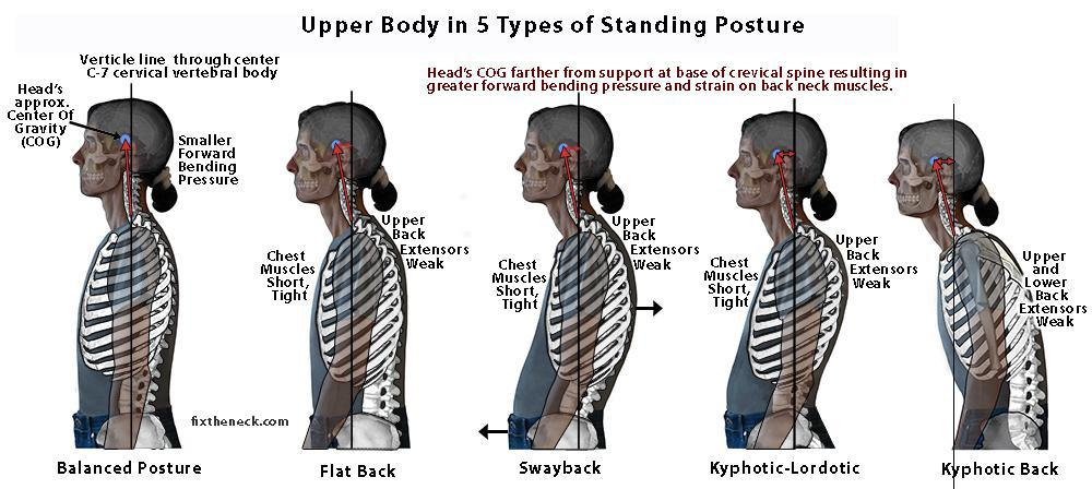 What type of posture do you have?