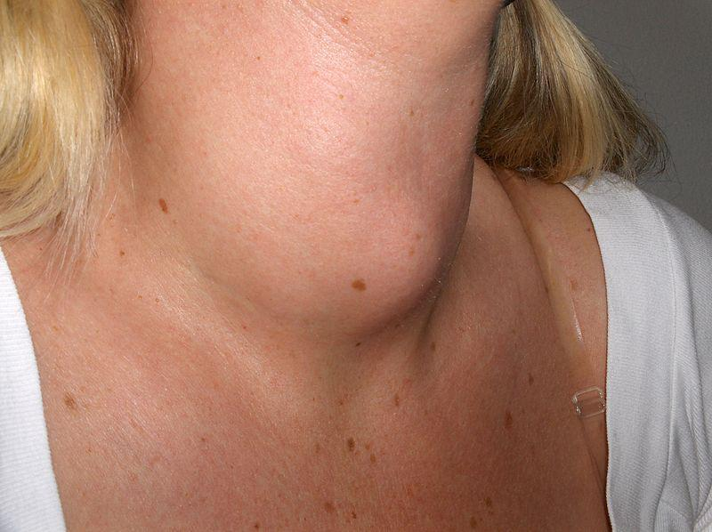 When A Lump In The Neck Is Cause For Concern Lakeshore Ear Nose