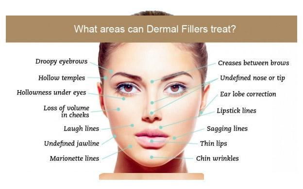 Dermal Fillers - Annandale, VA: Annandale Primary Care