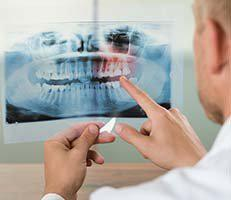 Dentist looking at xray