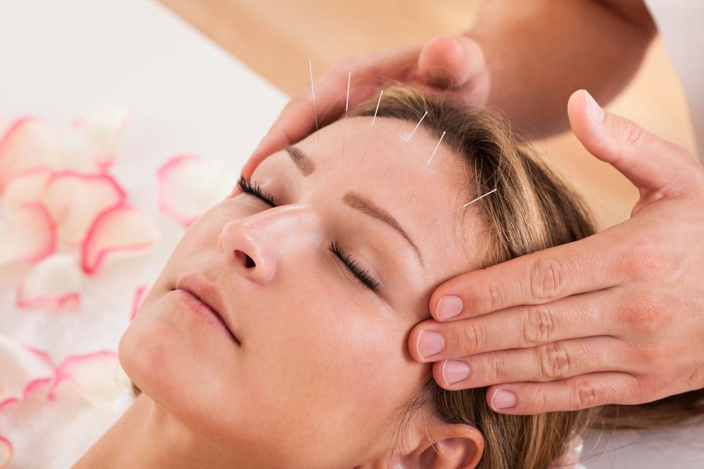 acupuncture, Dr. Spiegel