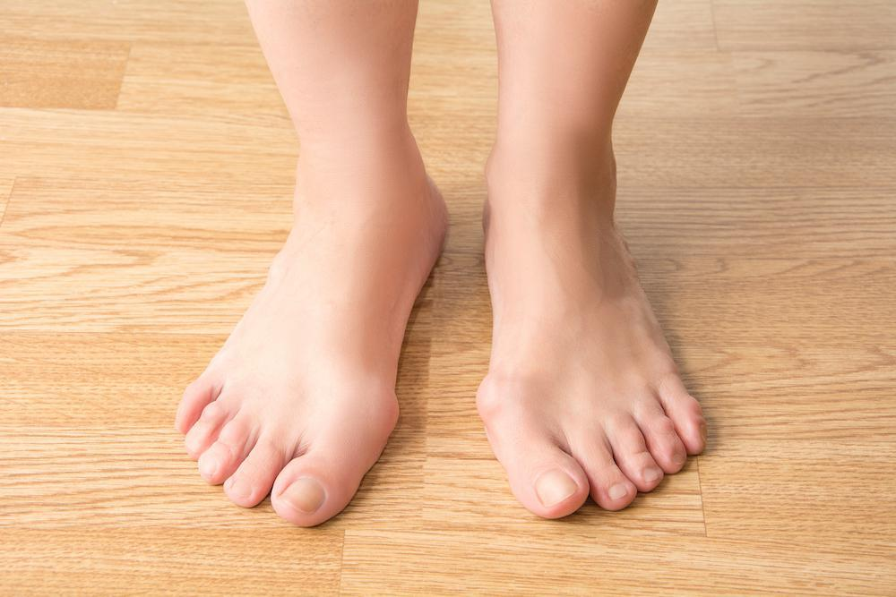 Bunions: Nobody wants them, but what's the cause?