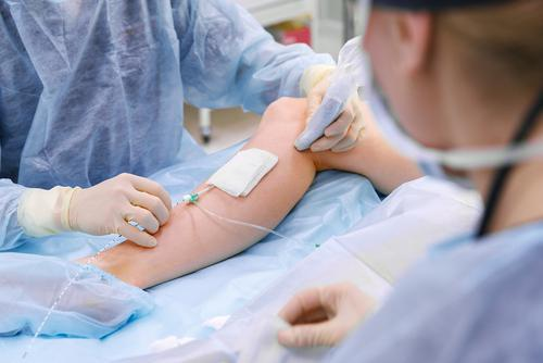 doctor varicose