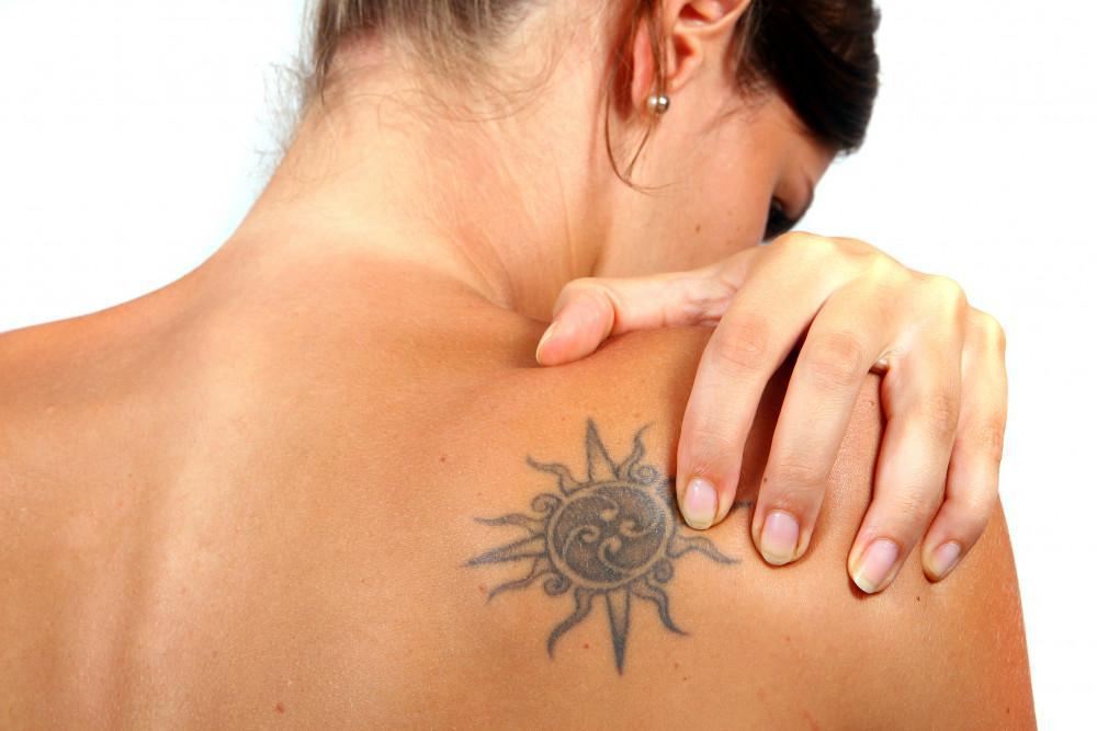 WHAT TO EXPECT WHEN YOU DECIDE ON LASER TATTOO REMOVAL: Jeffrey S ...