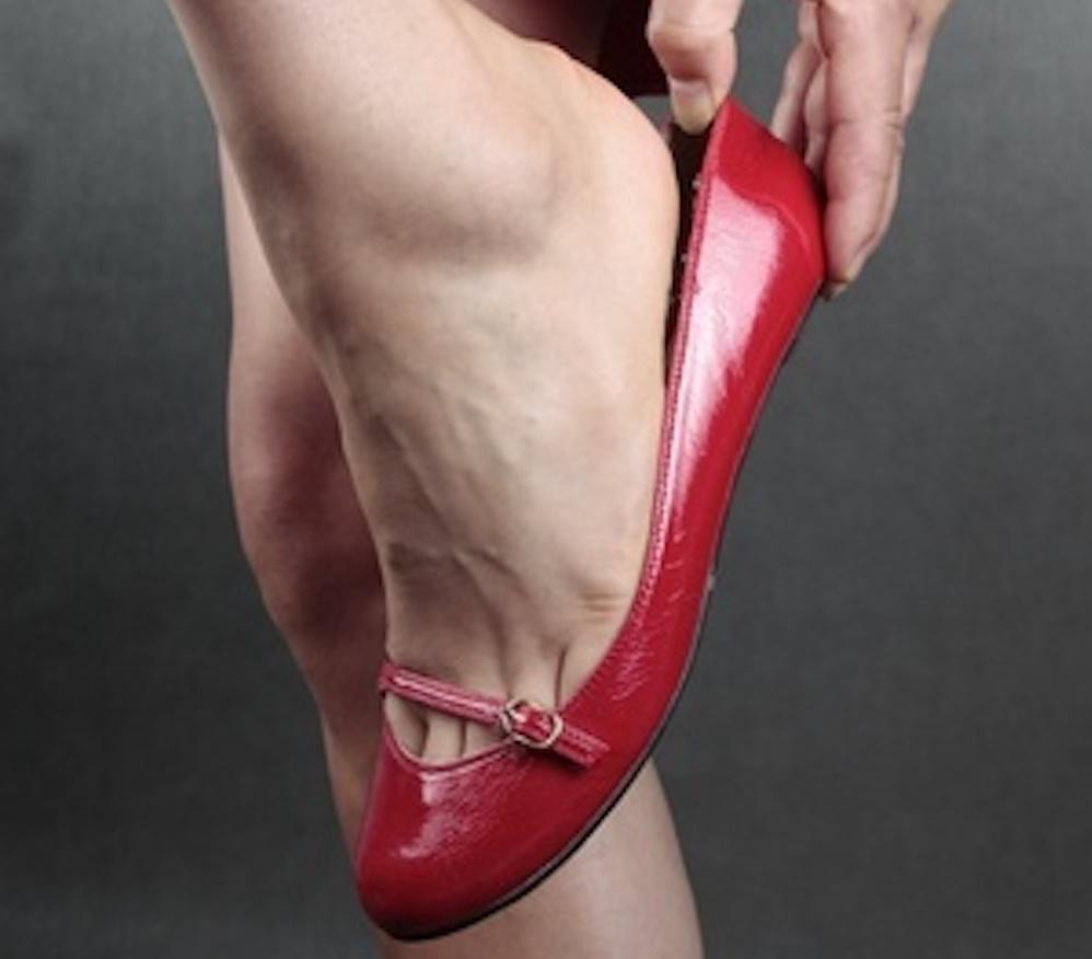 a8fae0cdd1c We ve written before about the problems associated with wearing high heels  for long periods (see our blog on the risks of wearing high heels).