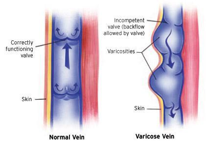 5 biggest varicose vein myths, busted jeffrey s gosin, md, facsthere are a lot of myths out there involving varicose veins and spider veins, what causes them, their treatment methods and so much more