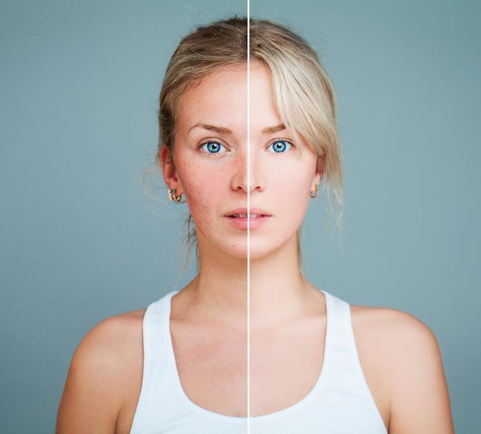 Halo Laser, Halo, Gynecologic Surgery and Menopause Options