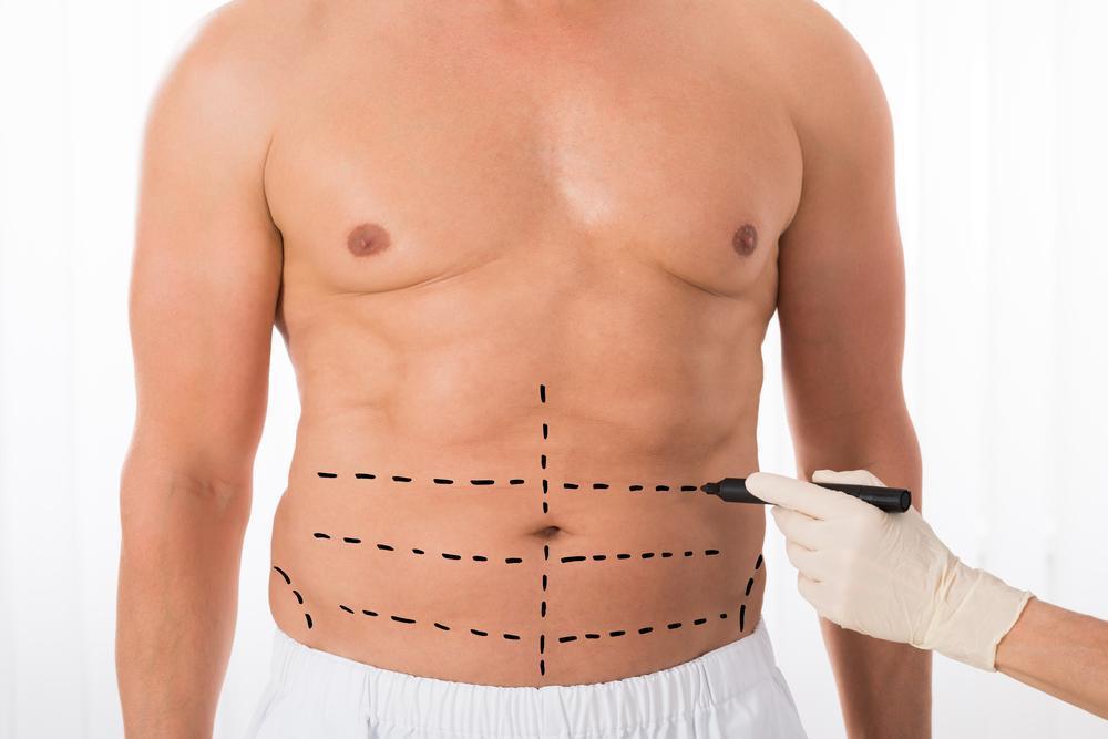 Seromas and Tummy Tuck: Robert J  Brueck, M D : Cosmetic Surgeon