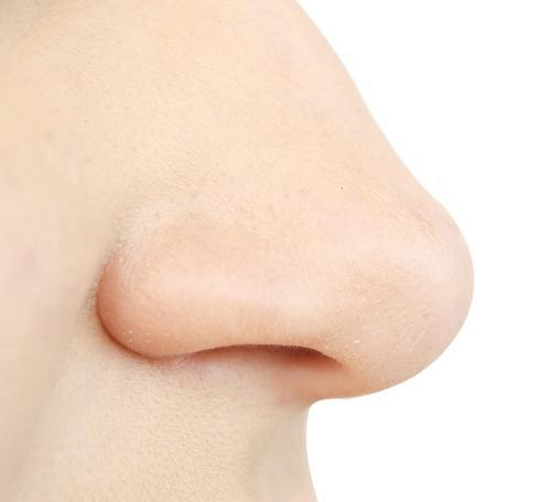 nose, rhinoplasty, septorhinoplasty, Southern ENT