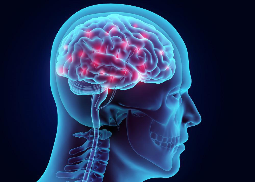 Chronic Pain Affects Your Brain, Carolinas Center for Advanced Management of Pain
