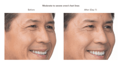 Botox®/ Dysport®/ XEOMIN® Before & After Photos - East Grand