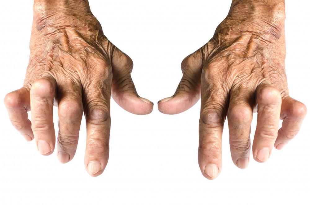 Arthritis Treatments, OrthoWellness, Dr. Mirylsa Colón-Martínez