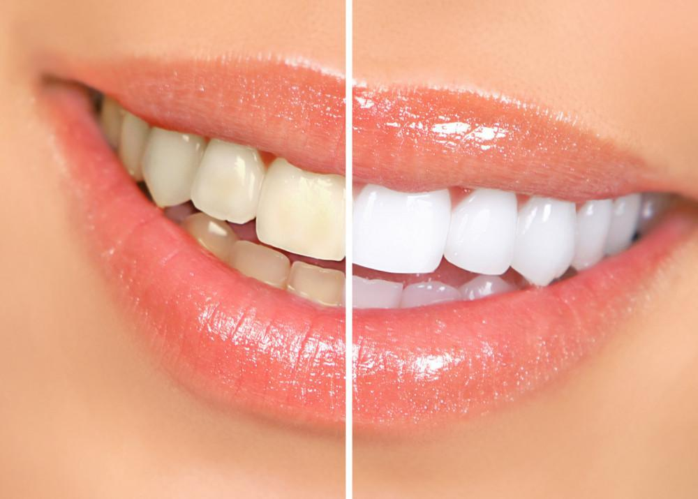 Teeth Professionally Whitened, David B. Epstein, The Woodlands Dental Group