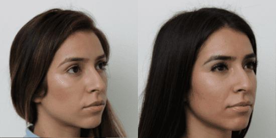 Voluma - Santa Barbara, CA: Kind Dermatology and Medical Spa