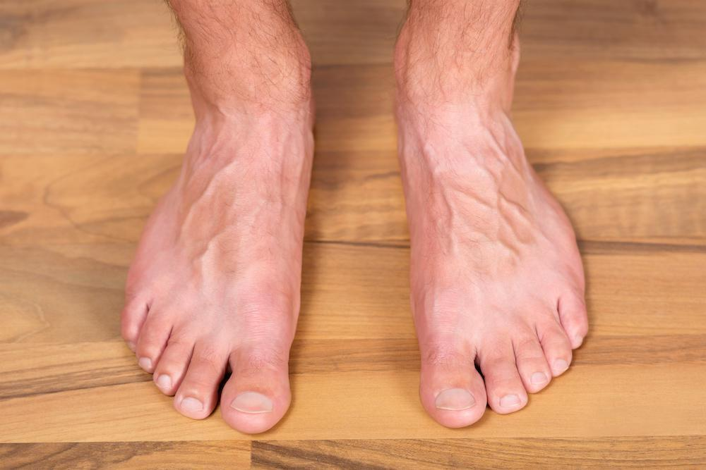 Flat feet can occur in adulthood. We have solutions.