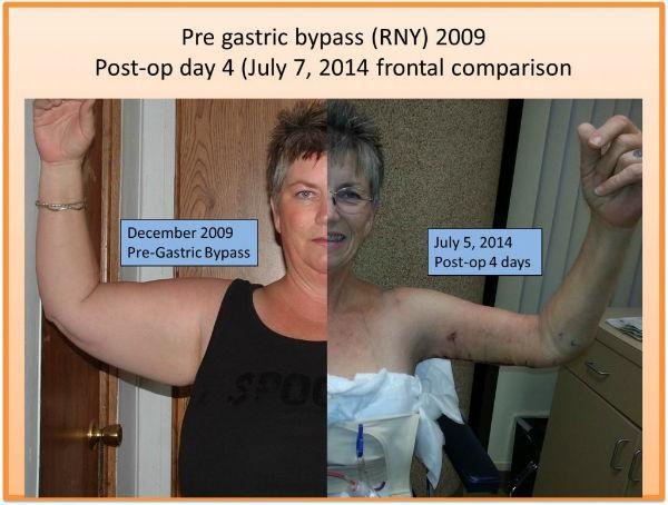 Post Bariatric Massive Weight Loss Patients San Diego Ca