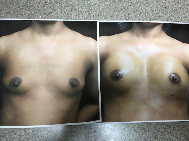before and after autologous fat transfer to the breast