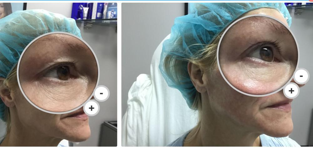 Eyelids lifted after 1 treatment.