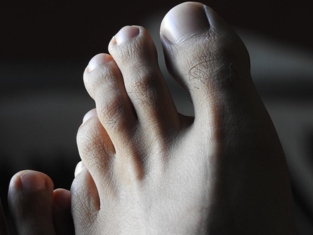 Toe Injury, Podiatry Hotline Inc., Dr. Thomas Rambacher