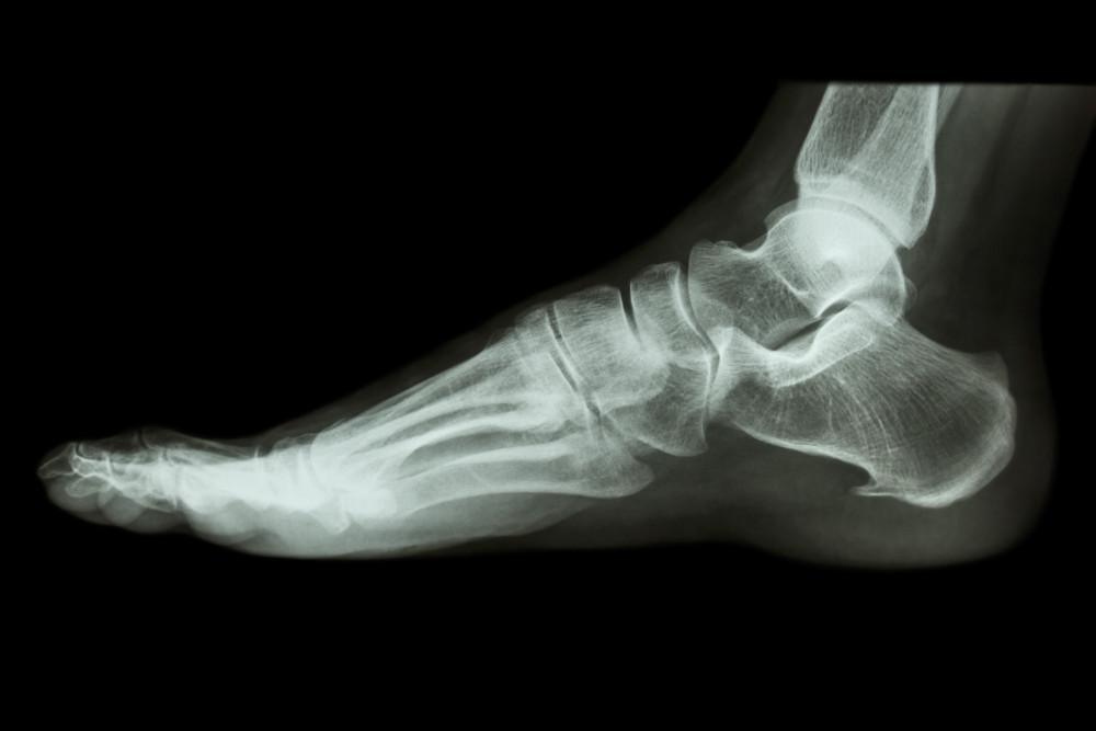Heel Spurs, Center for Podiatric Care and Sports Medicine