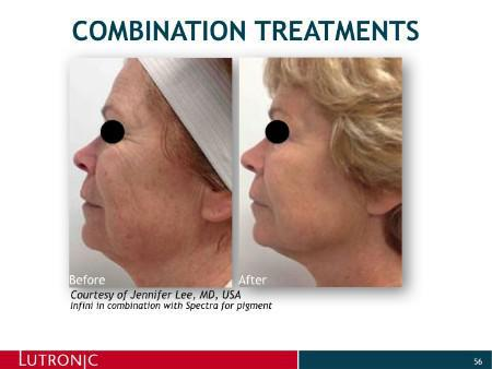 INFINI Laser Before and After - McLean, VA: District Dermatology